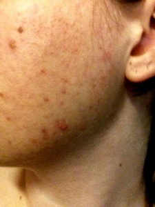 My skin in 2013..only three of the spots are freckles.